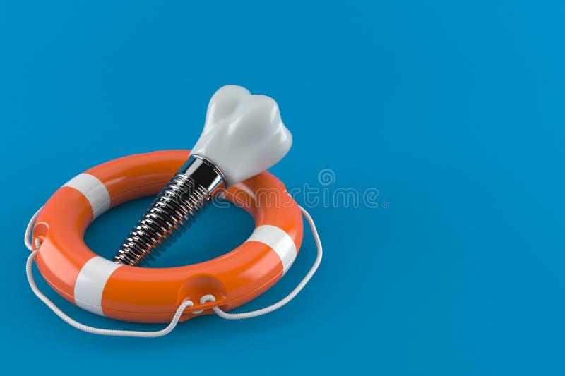 Implant dentaire avec la balise de vie illustration de vecteur