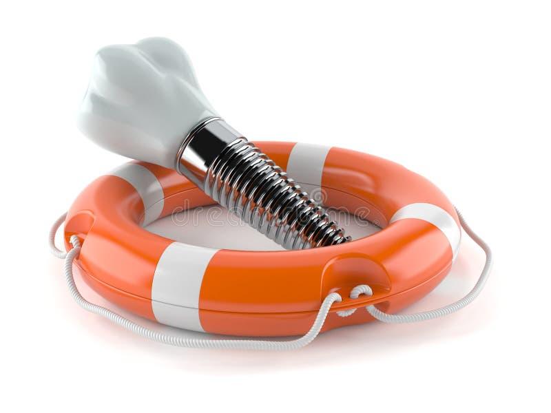Implant dentaire avec la balise de vie illustration libre de droits