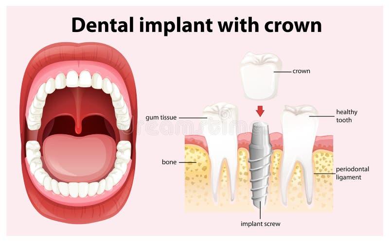 Implant dentaire avec le vecteur de couronne illustration libre de droits