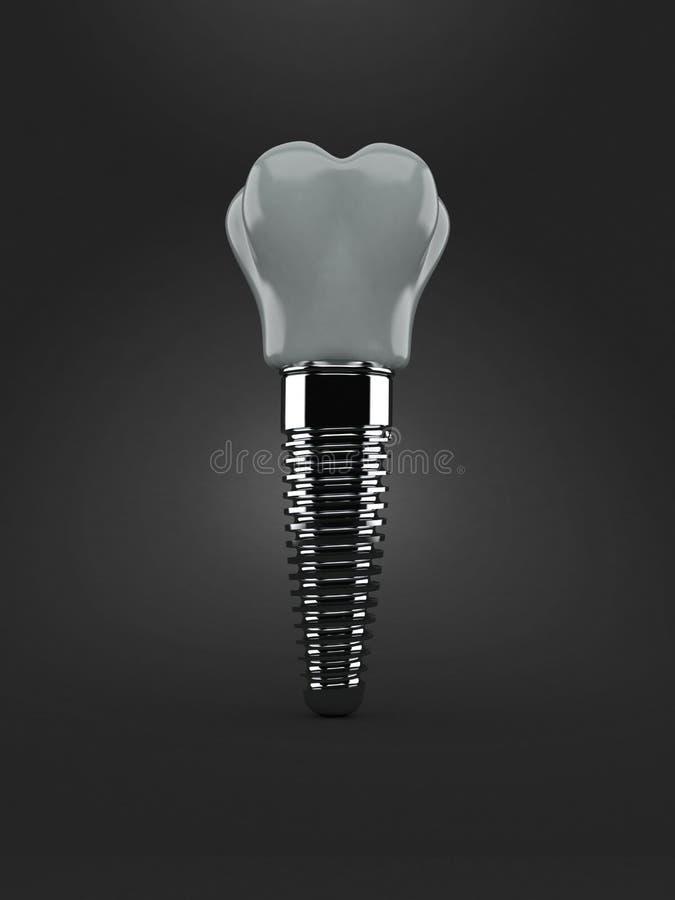 Implant dentaire d'isolement illustration libre de droits