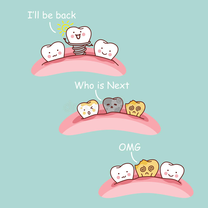 Implant dentaire de bande dessinée illustration stock