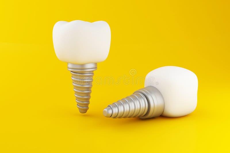 implant dentaire de la dent 3d illustration de vecteur