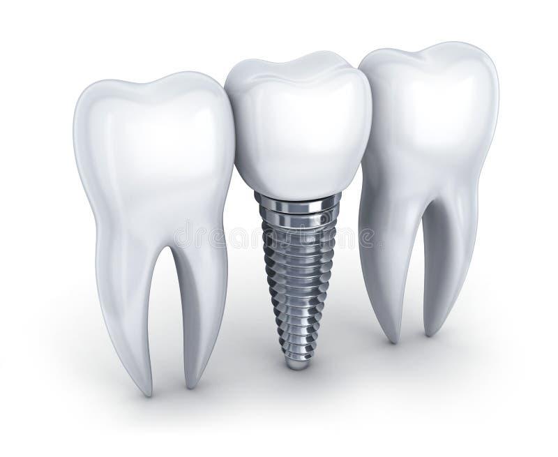 Implant dentaire et dent illustration stock