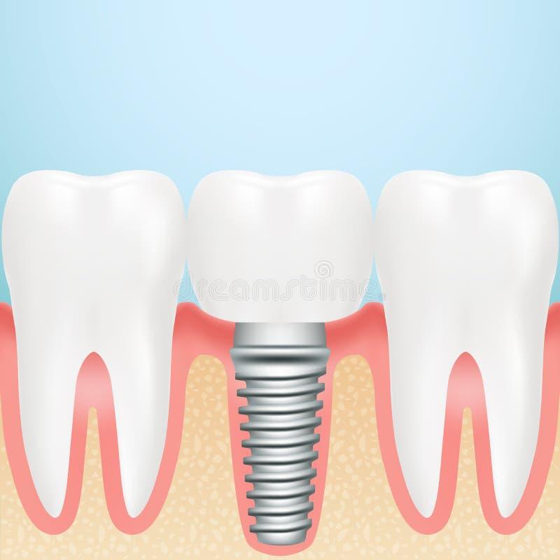 Implant dentaire réaliste Installation d'implant dentaire avec toutes les pièces couronne, butée, vis sur un fond illustration libre de droits
