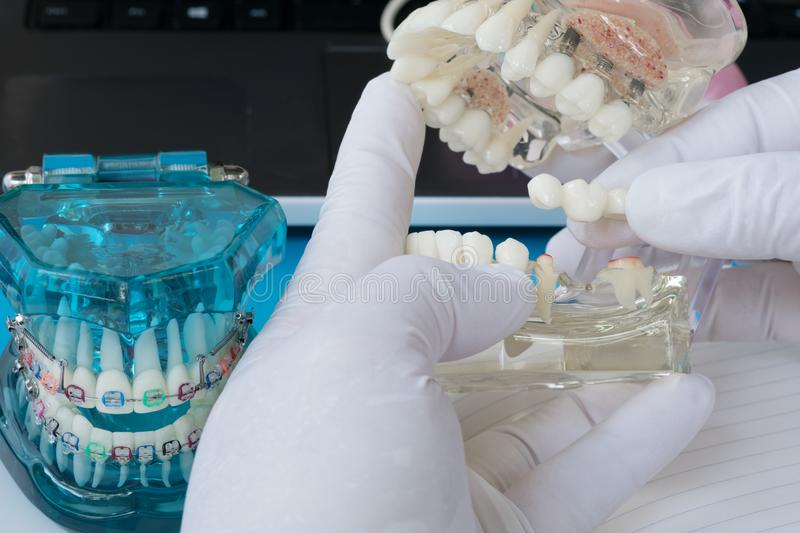 Implant en orthodontisch model royalty-vrije stock afbeeldingen
