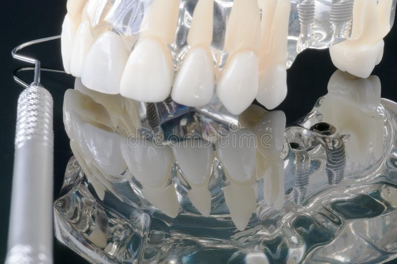 Implant en orthodontisch model stock fotografie