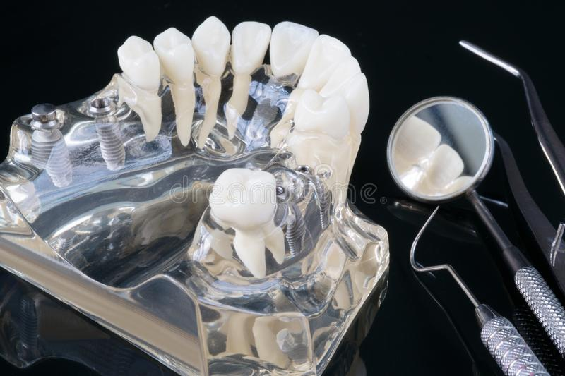 Implant en orthodontisch model stock afbeelding
