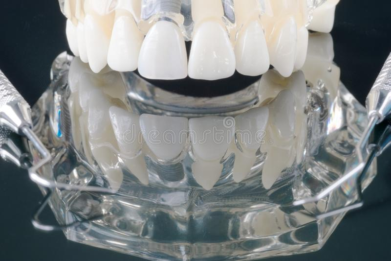 Implant en orthodontisch model royalty-vrije stock foto