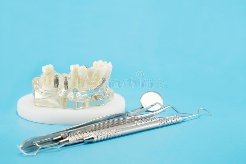 Implant en orthodontisch model royalty-vrije stock fotografie