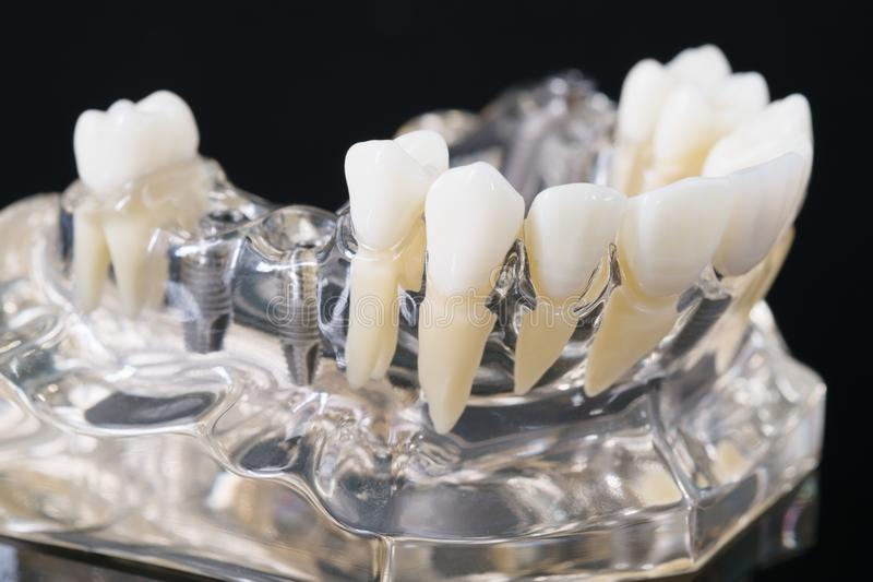 Implant en orthodontisch model royalty-vrije stock foto's