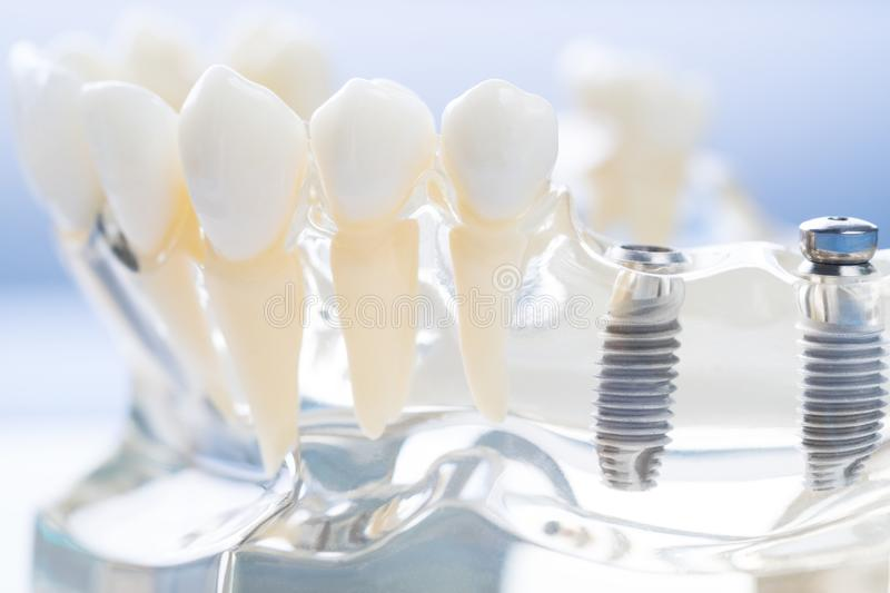 Implant en orthodontisch model stock afbeeldingen