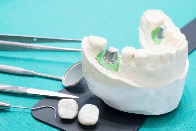 Implant en prosrthodontic model royalty-vrije stock fotografie