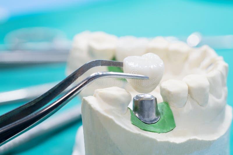 Implant en prosrthodontic model royalty-vrije stock foto's