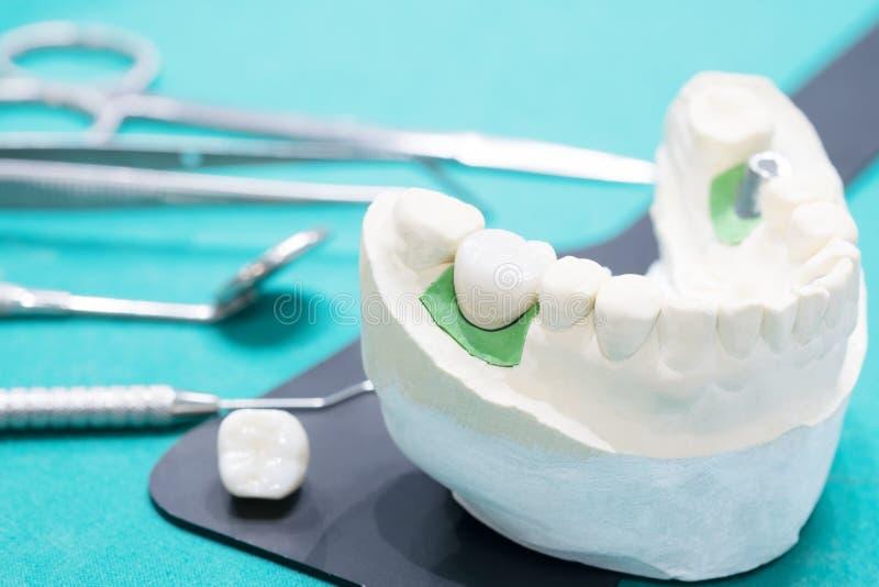 Implant en prosrthodontic model stock foto's