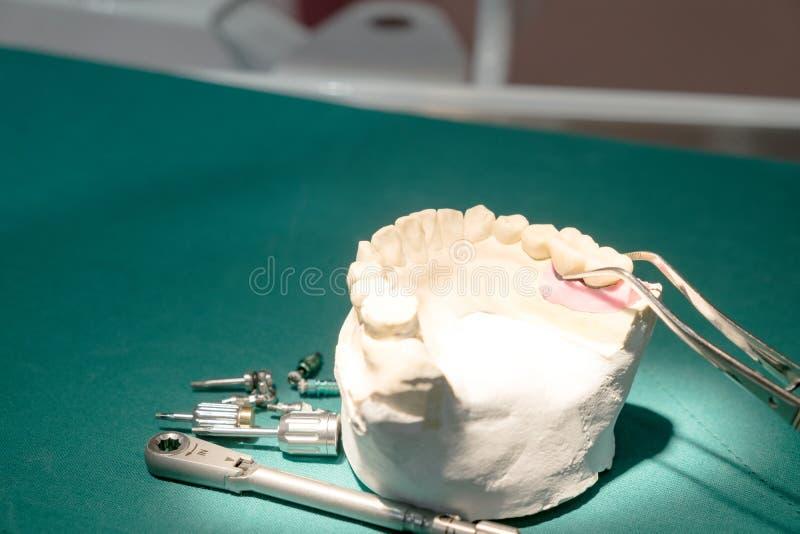 Implant en prosrthodontic model stock fotografie