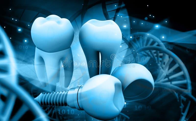 Implant humain de dent illustration de vecteur