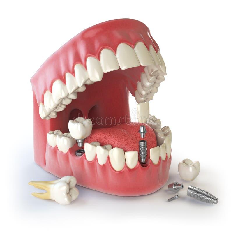Implant humain de dent Concept dentaire Dents ou dentiers humains illustration stock