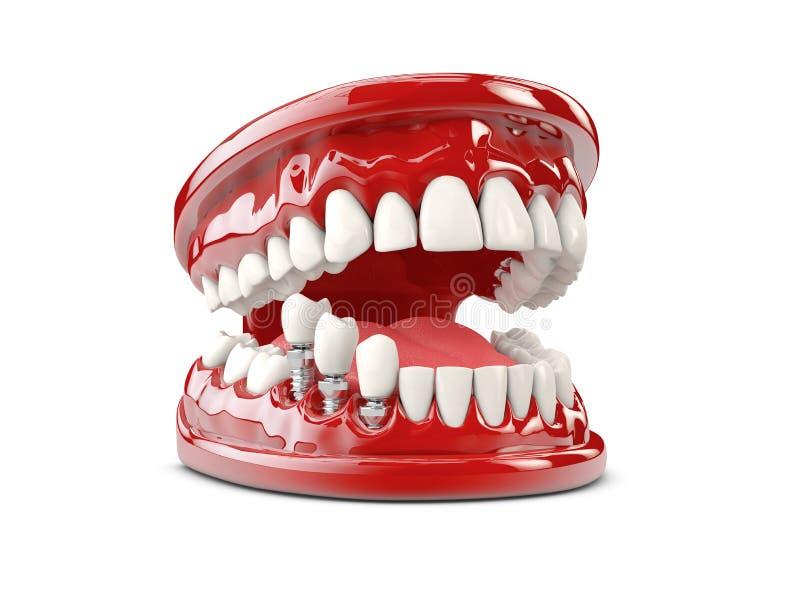 Implant humain de dent Illustration dentaire du concept 3d images stock