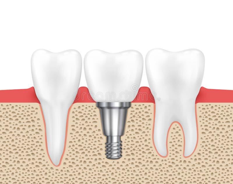 Implant humain dentaire illustration de vecteur