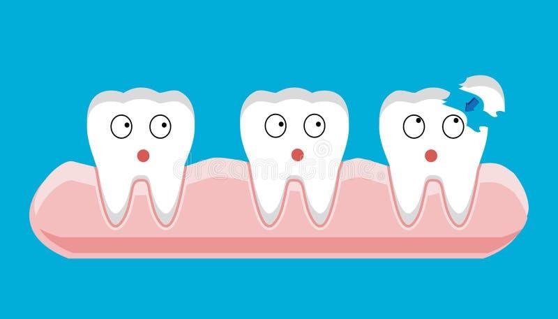 Implant remplissant de bande dessinée de dent, implanté, implantation, dentaire, implantation, dentaire, illustration libre de droits