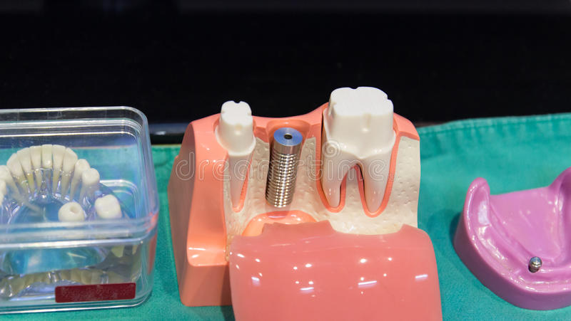 The implant substructure teeth model. The implant substructure model for teeth treatment demonstration royalty free stock photos
