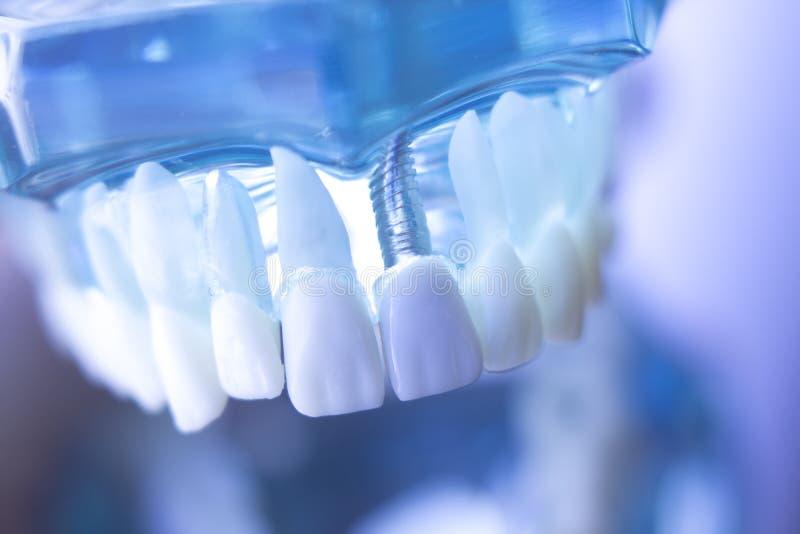 Implant van de Dentsts tandtand stock afbeelding