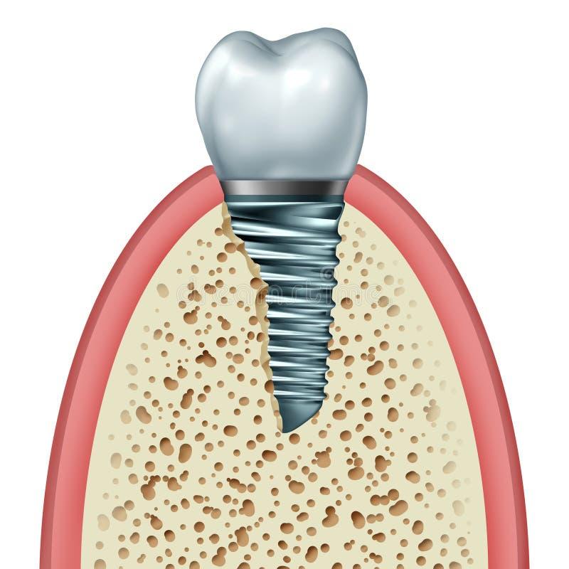 Implant van de tand stock illustratie
