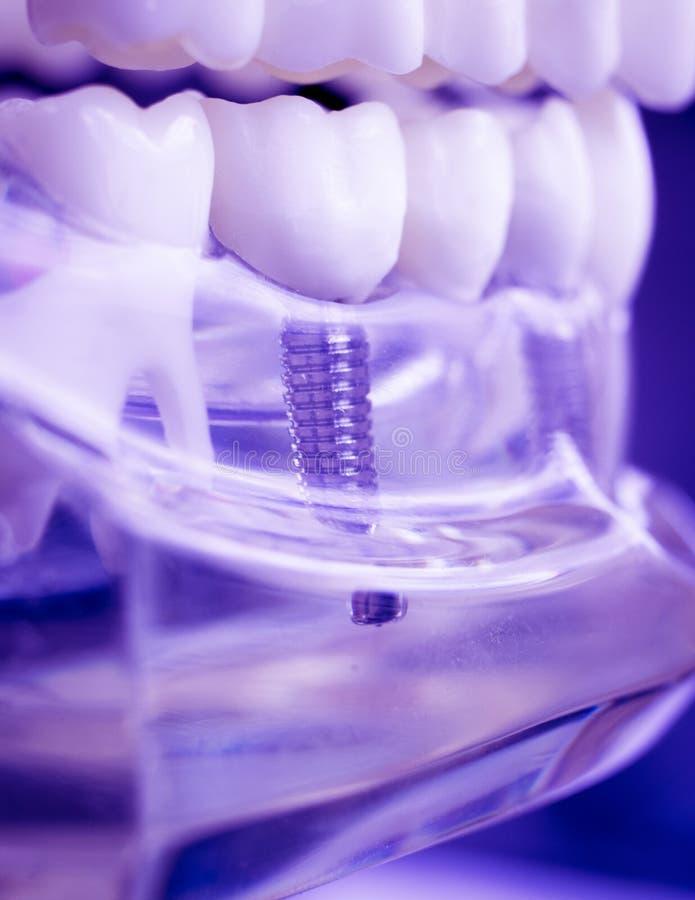 Implant van tandarts tandtanden royalty-vrije stock afbeeldingen
