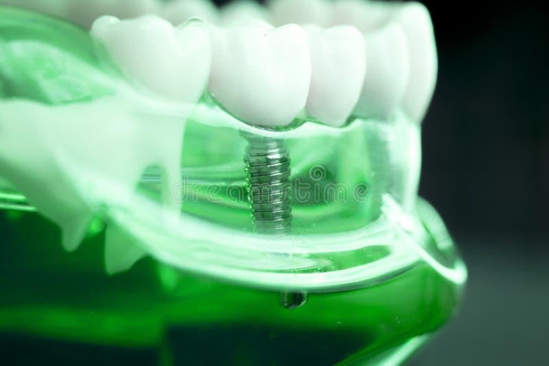 Implant van tandarts tandtanden royalty-vrije stock afbeelding