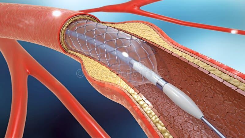 Implantação do Stent para a circulação sanguínea de apoio em vasos sanguíneos ilustração royalty free