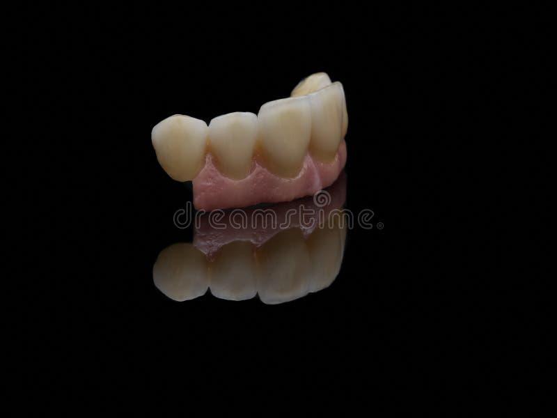 implantat stockbild