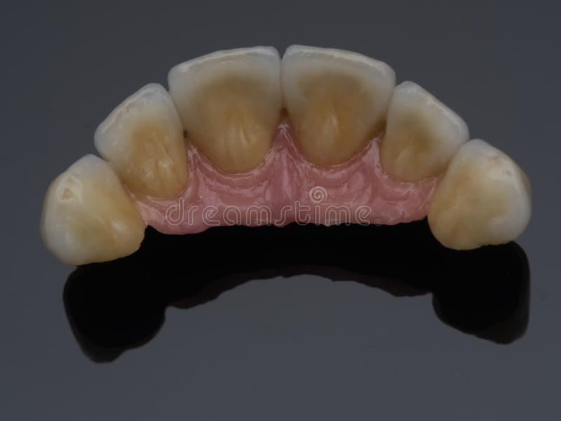implantat stockfotografie