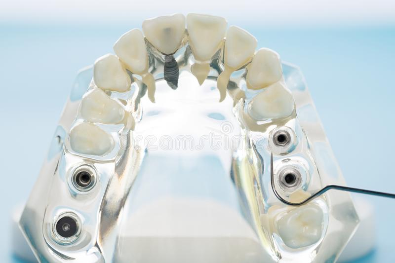 Implantat och orthodontic modell royaltyfria bilder