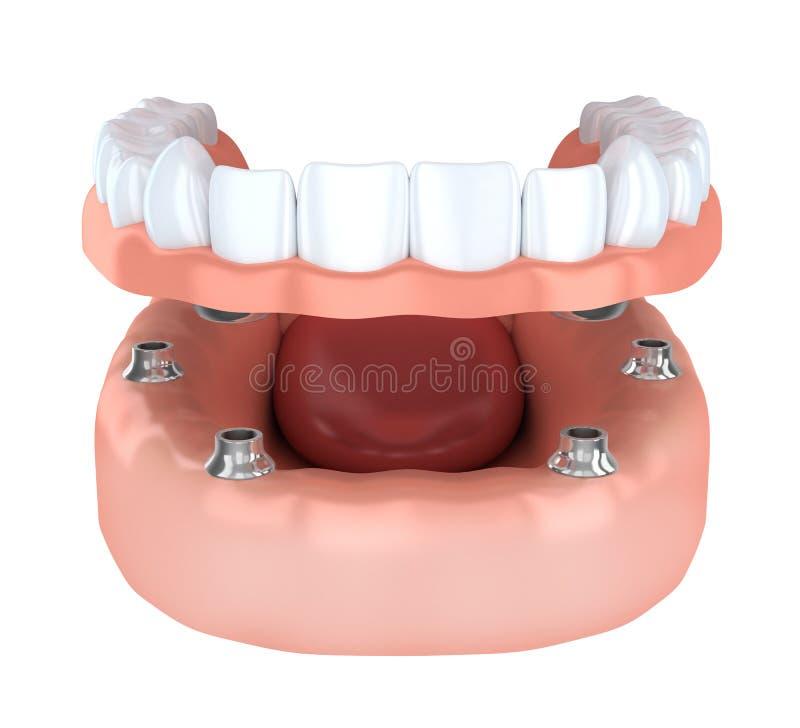 Implantation de dent, dentier illustration libre de droits