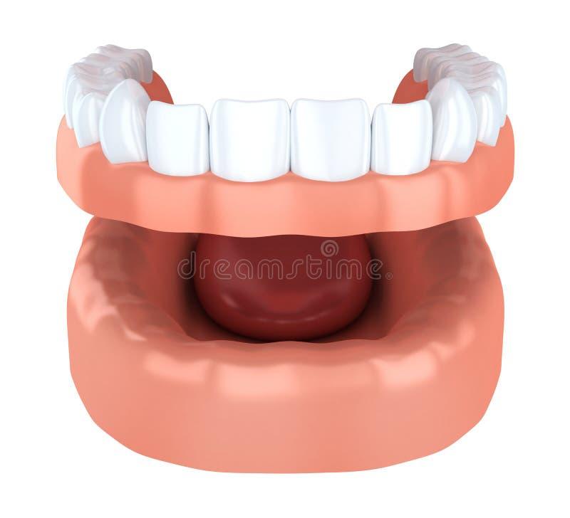 Implantation de dent, dentier illustration de vecteur