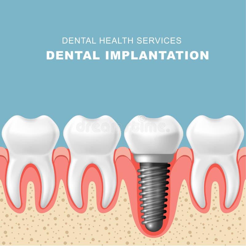 Implantation dentaire - rangée des dents, gomme avec l'implant illustration stock