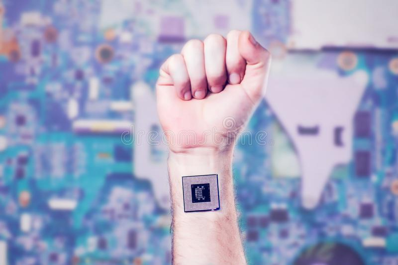 Implante biônico do processador da microplaqueta no corpo humano - conceito futuro da tecnologia e da cibernética fotografia de stock royalty free