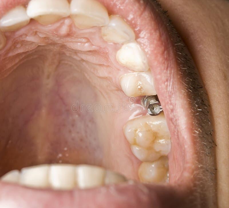 Implante da odontologia fotografia de stock