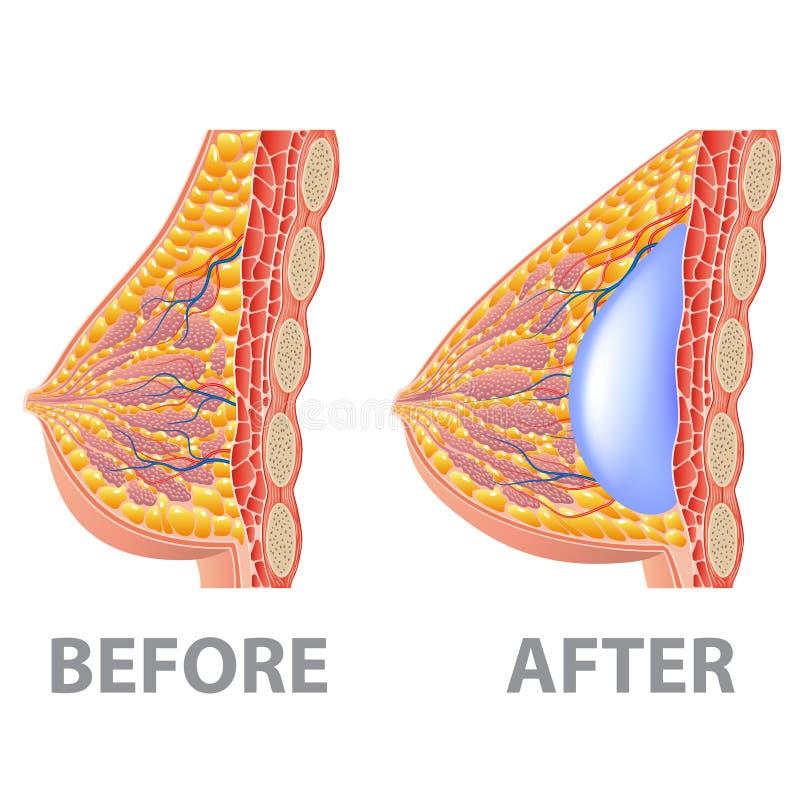 Implante de pecho antes y después de aislado en el vector blanco libre illustration