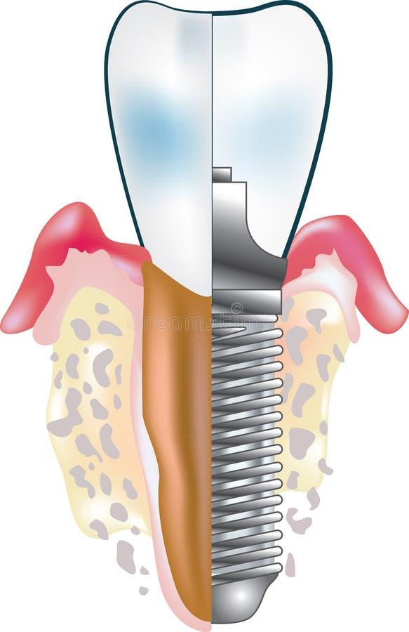 Implante dental ilustração royalty free