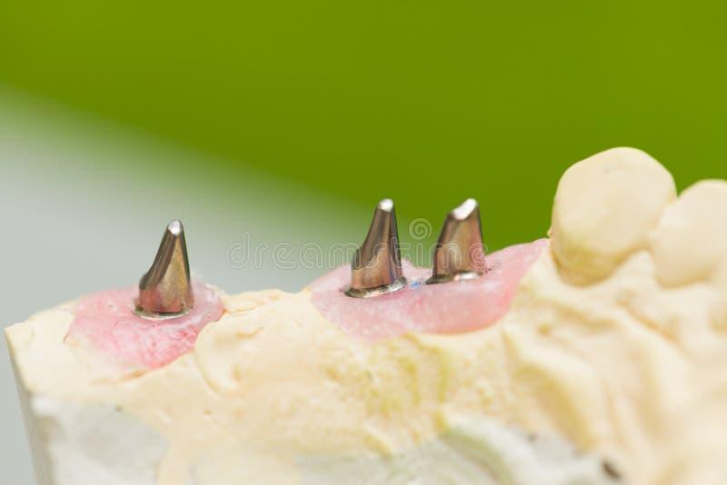 Implante dental fotografia de stock royalty free