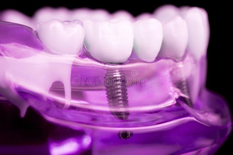 Implante dental de los dientes del dentista foto de archivo libre de regalías