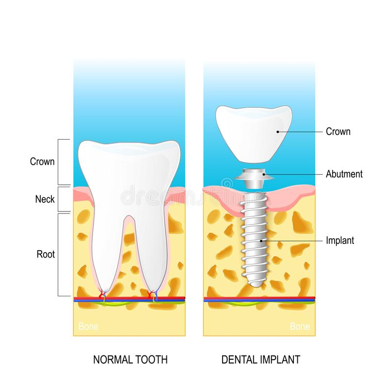 Implante dental Diagrama do vetor para o uso médico ilustração royalty free