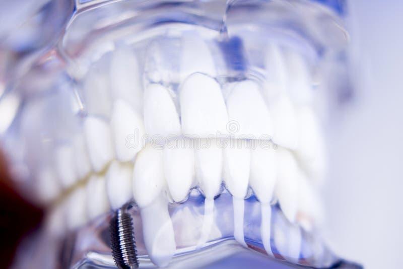 Implante dental dos dentes dos dentistas foto de stock