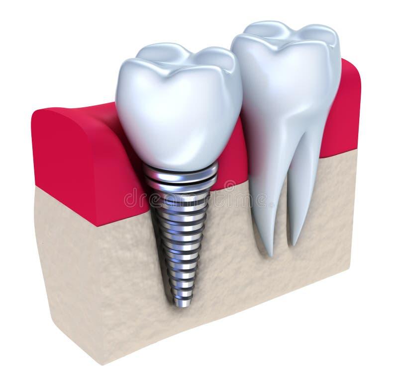 Implante dental - implantado no osso da maxila ilustração royalty free