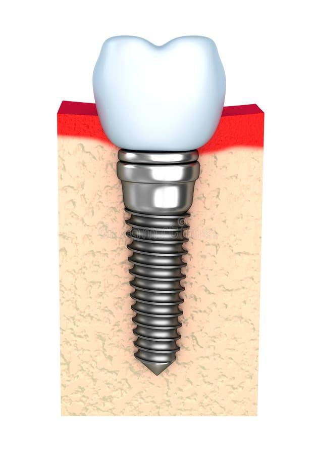 Implante dental no osso da maxila ilustração stock