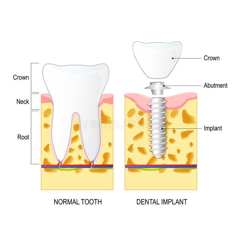 Implante dental, y diente normal ilustración del vector