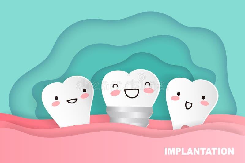 Implante do dente dos desenhos animados ilustração stock