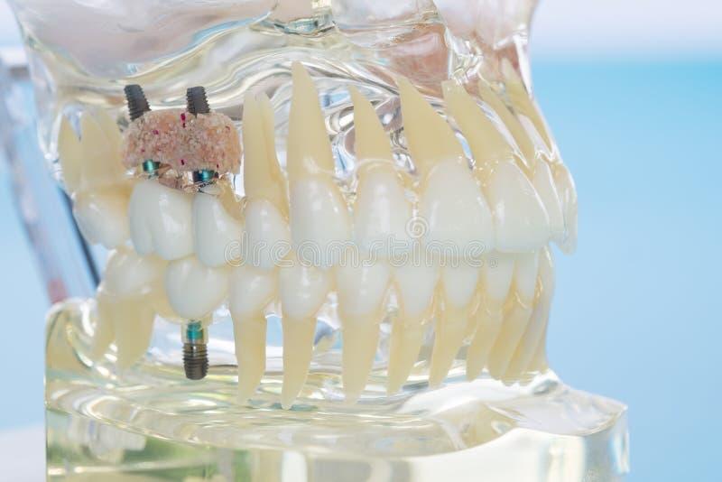Implante e modelo ortodôntico fotos de stock royalty free