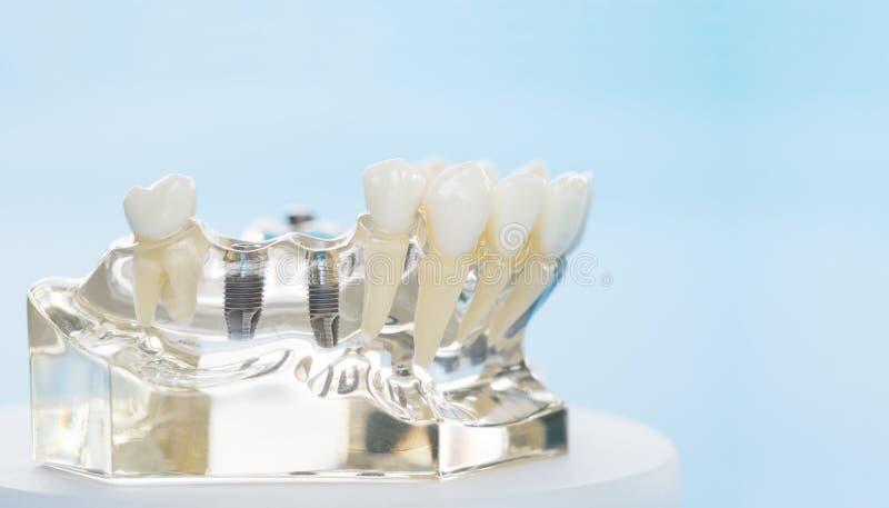 Implante e modelo ortodôntico imagens de stock royalty free